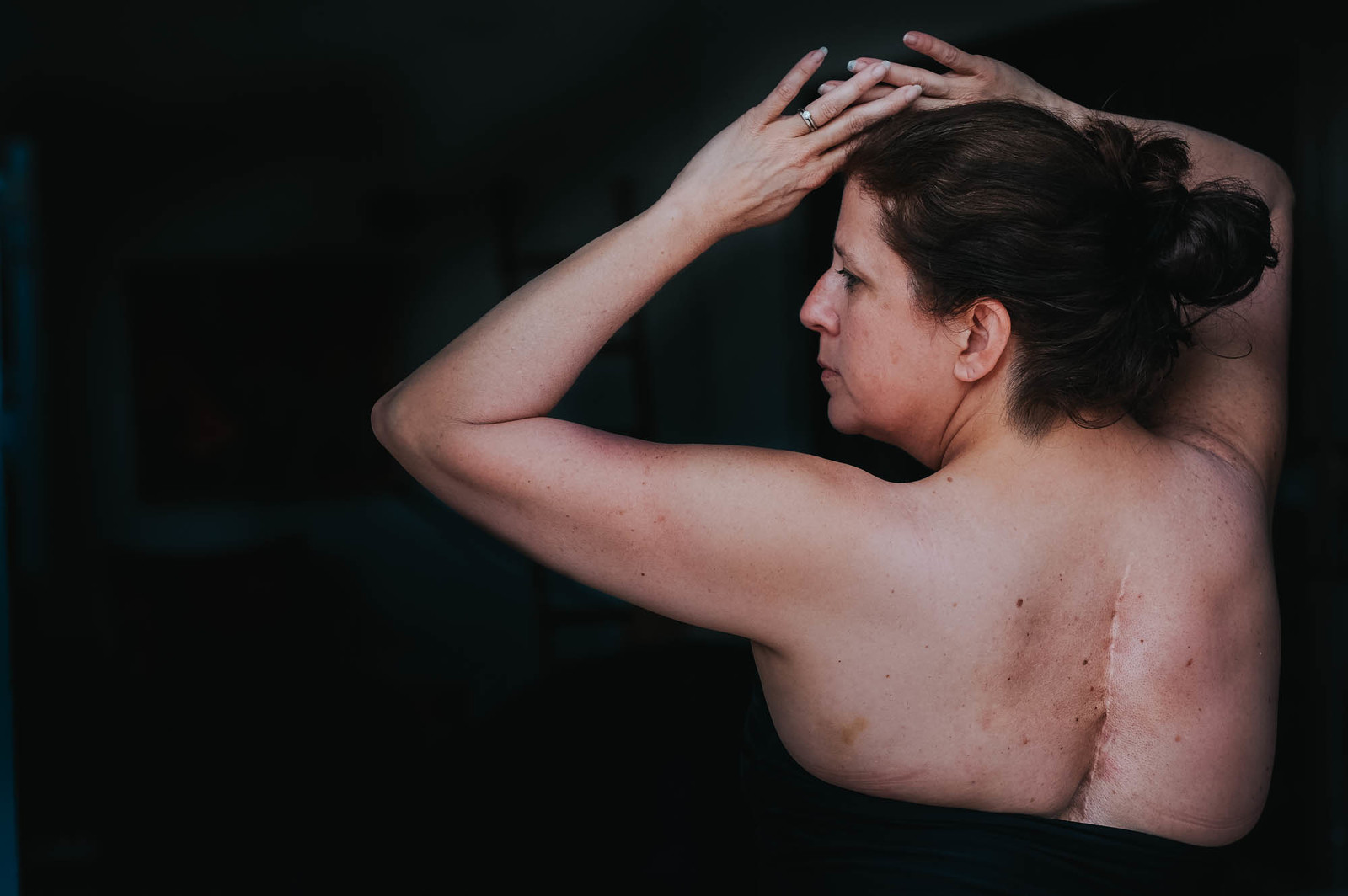 Waist up view of woman with her back to the viewer, arms raised showing scars from spina bifida